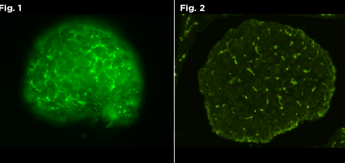 Figure 1: Live Fluorescent image of GFP positive neonate. Figure 2: Fluorescent image of GFP positive neonate.