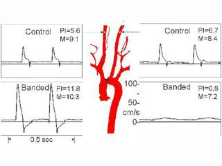 Effects of transverse aortic banding on carotid blood flow patterns in mice