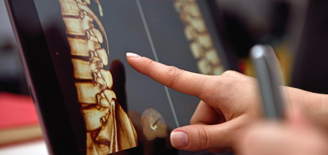 3D spine scan tablet
