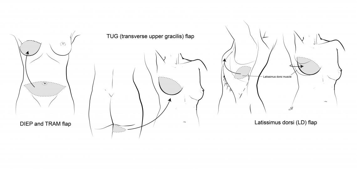 Illustration of thigh and lat flap reconstruction