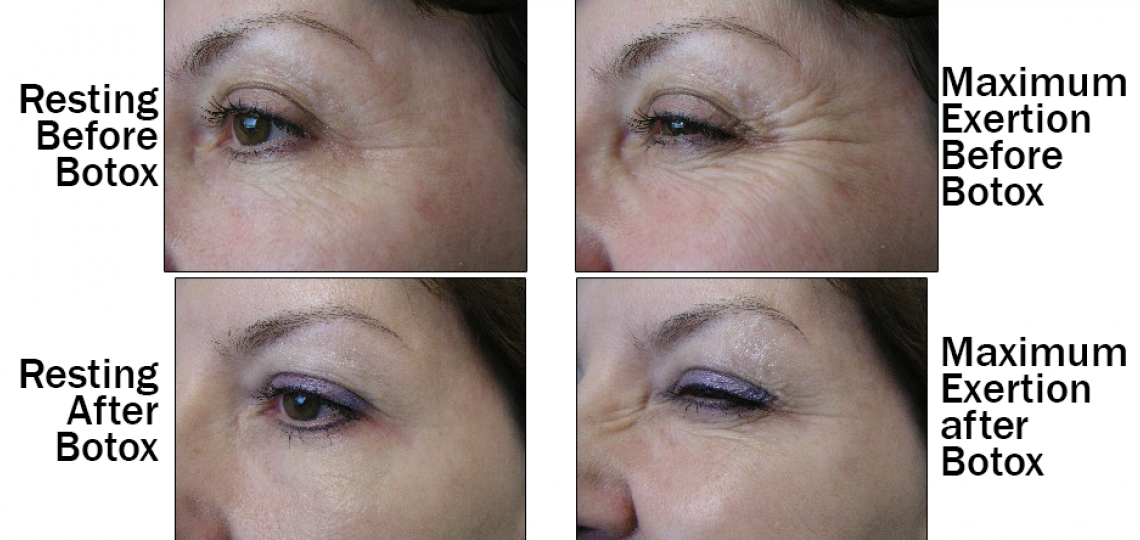 Before and After, Botox for wrinkles.