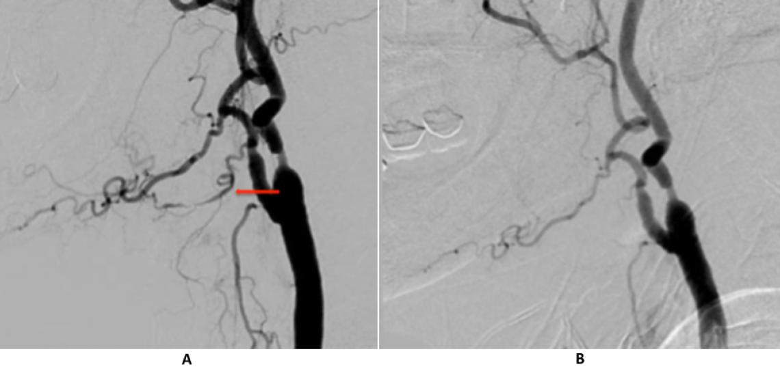 Right common carotid injection (A) shows an irregular lingual artery as the source of bleeding (arrow). The lingual artery no longer fills on the post embolization angiogram (B).