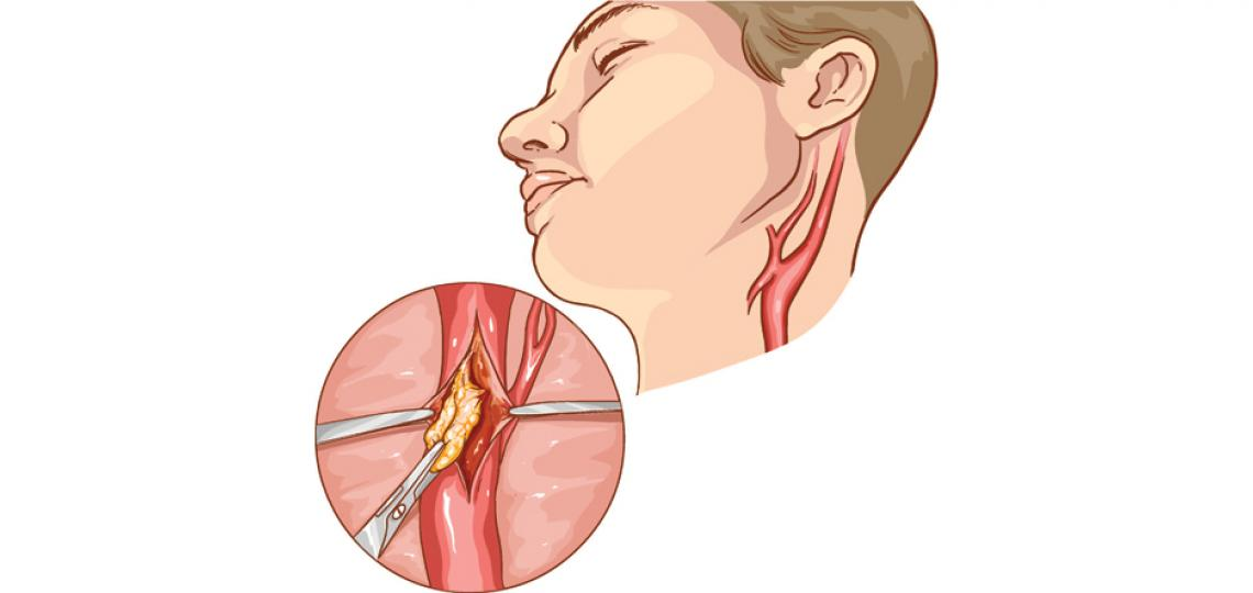 Artist depiction of a carotid endarterectomy surgery at the stage where the atherosclerotic plaque is being removed from the artery
