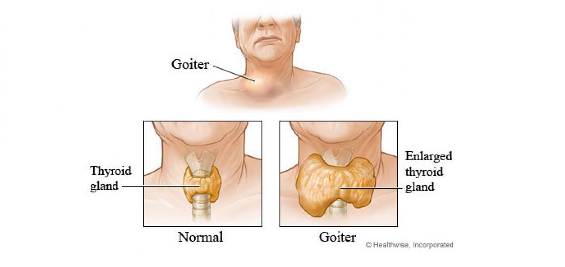 Often goiter can be easily seen as a lump in the front of the neck, slightly to the left and/or right of center.