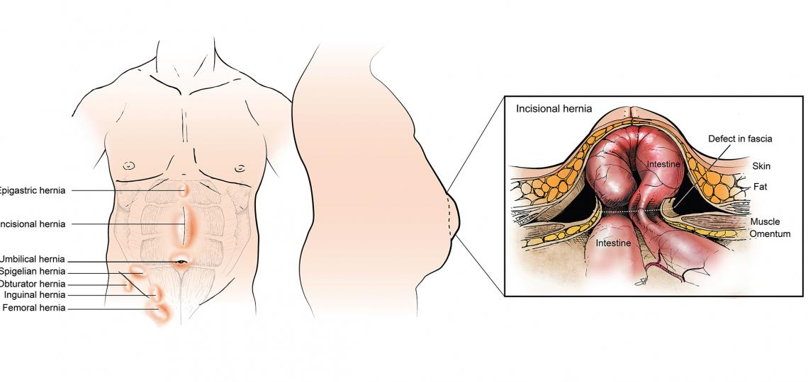 Hernia types and locations