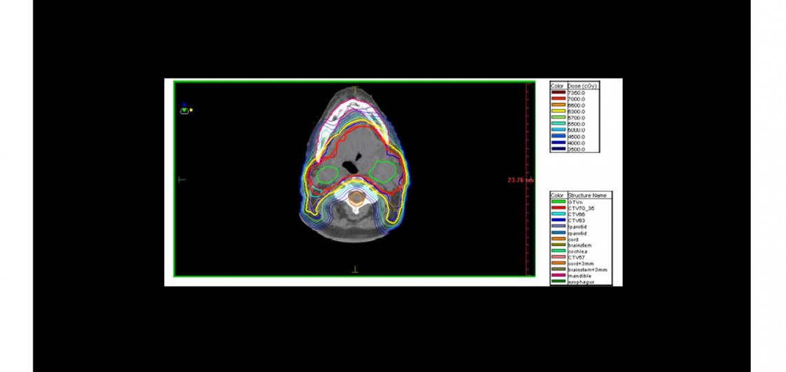 INTENSITY MODULATED RADIATION THERAPY (IMRT) houston texas medical center radiation best
