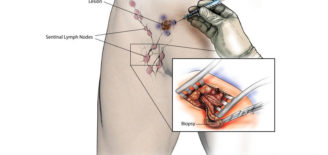 Inguinal sentinel lymph node biopsy