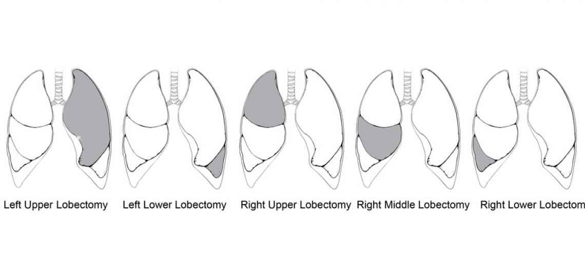 Types of lobectomies, grey indicates resected lobe