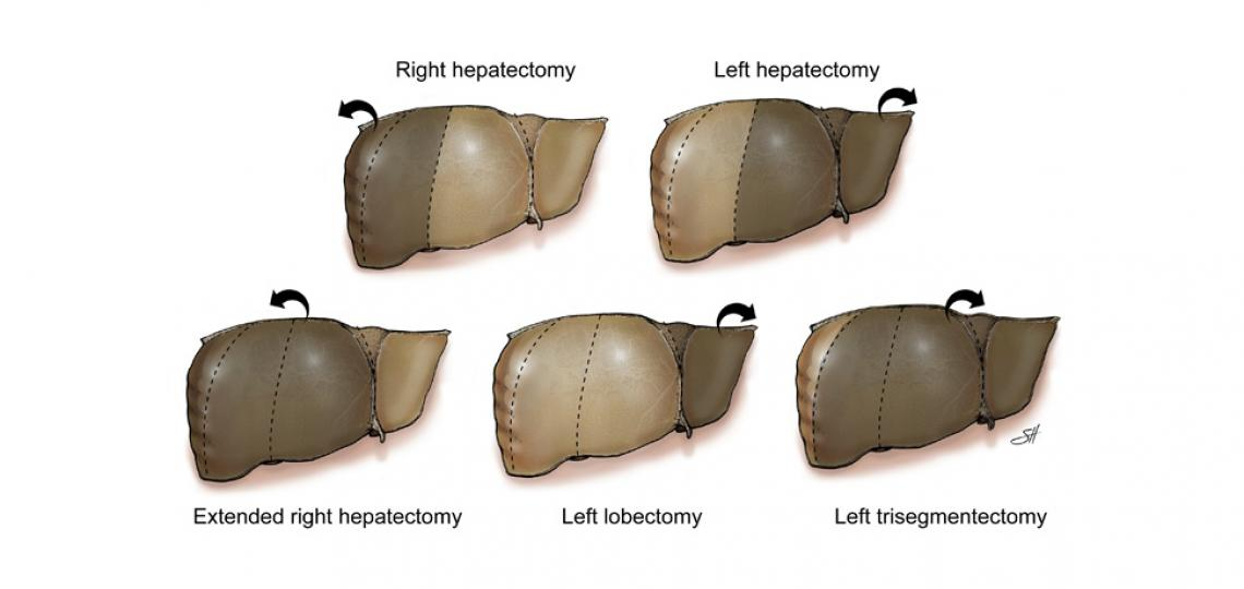 Common hepatectomy types showing resected portions (shaded with arrow). Illustration by Scott Holmes