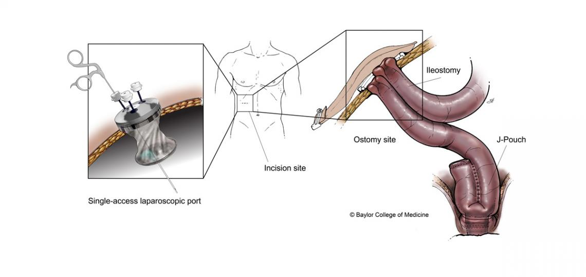The single-access J-pouch procedure utilizes the same incision site for both the laparoscopic access port and the site of the ileostomy. Illustration by Scott Holmes