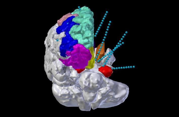 Translating electrophysiology to stimulation Imaging Tools