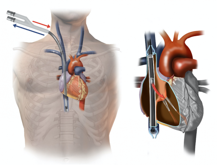 ECMO illustration