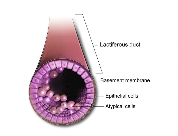 Ductal Carcimoma In Situ is an early stage of cancer that is contained in the lactiferous or lobar ducts in the breast.