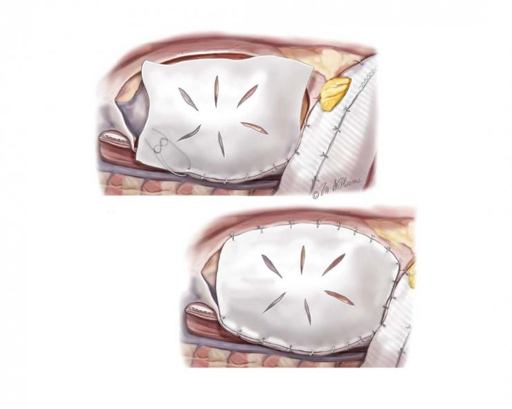 A pericardial patch is scored and sewn to the pericardial edge. Both patches are sutured to the cut edge of the pericardium and to each other. Image courtesy McGraw-Hill Company.